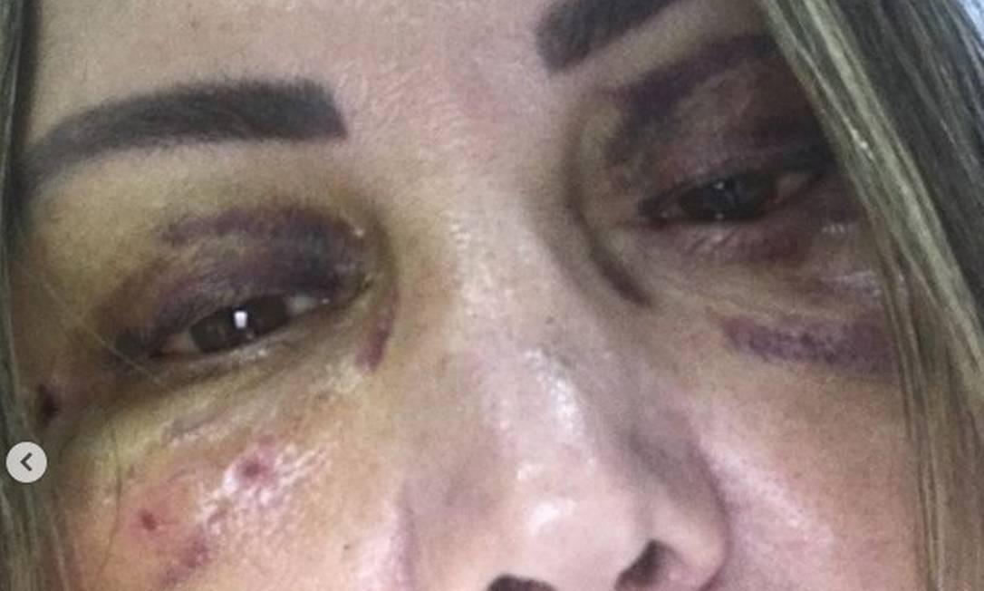 Elaine Caparroz mostrou como está seu rosto Foto: Instagram / Reprodução