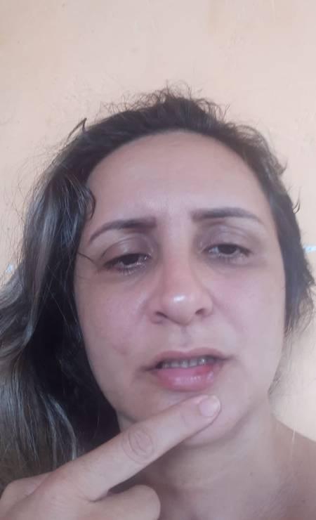 Rosana mostra a lesões provocadas pela agressão Foto: Arquivo Pessoal
