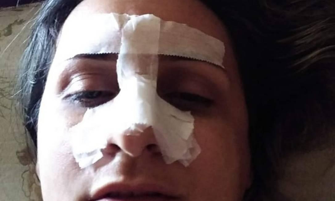 Rosana teve o nariz quebrado em uma das surras Foto: Arquivo Pessoal