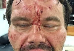 O jornalista polonês Tomasz Surdel foi detido e agredido por membros da Força de Ação Especial da Polícia Nacional Bolivariana Foto: Reprodução Twitter