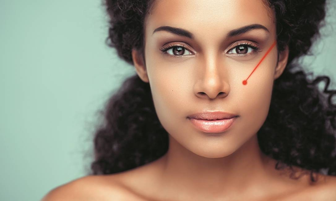 Laser para pele negra Foto: Shutterstock