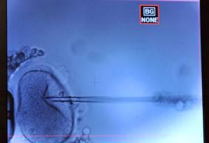 Equipe de Barcelona transferiu DNA da mãe para óvulo de doadora, e o fecundou com espermatozoide do pai Foto: GEORGES GOBET / GEORGES GOBET