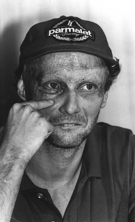 Arquivo 18/01/1983, - Niki Lauda fala de sua cirurgia em coletiva no Hotel Sheraton no Rio de Janeiro Foto: Luiz Pinto / AOG
