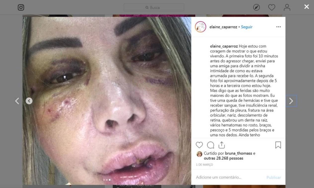 """Em seu Instagram, no dia 1º de março, Elaine posta pela primeira vez uma foto sua, mostrando sua recuperação após o ataque sofrido. """"Hoje estou com coragem de mostrar o que estou vivendo"""", escreveu a paisagista Foto: Reprodução"""