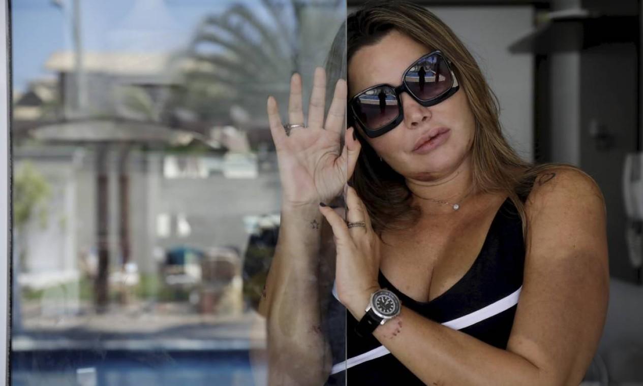 Elaine Caparróz, na casa de amigos, após deixar o hospital - 24/05/2019 Foto: Custódio Coimbra / Agência O Globo