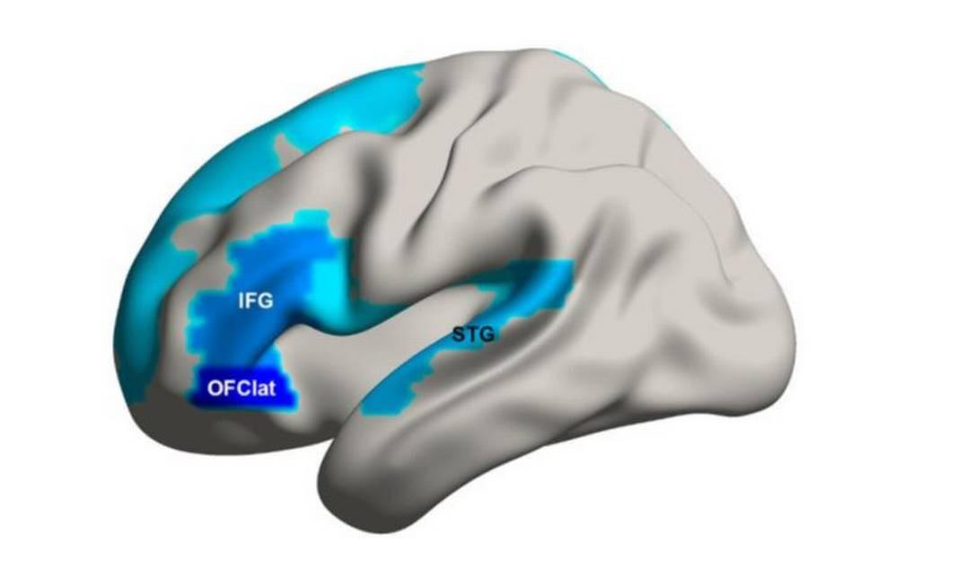 Artigo: O cérebro fumante