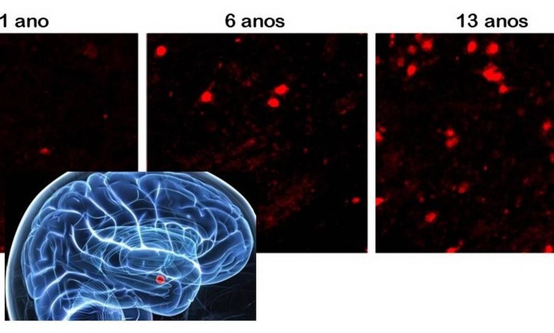 Os neurônios, em foto ao microscópio, estão marcados em vermelho em cada idade, mostrando a presença de uma proteína que indica sua maturidade. O número de neurônios maduros só aumenta após a adolescência. A amígdala é a região assinalada em vermelho no cérebro azul. Foto: Acesso livre / Nature Communications 2019