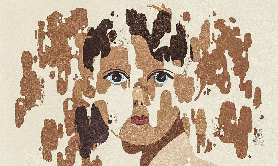 Vitiligo não tem cura, mas novos tratamentos oferecem esperança aos pacientes Foto: GRACIA LAM / NYT