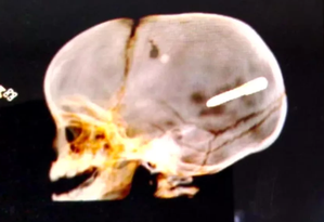 Bebê foi atingido na terça-feira por peça de obra. Médicos não conseguiram retirar objeto, que atingiu o cérebro da criança Foto: Reprodução