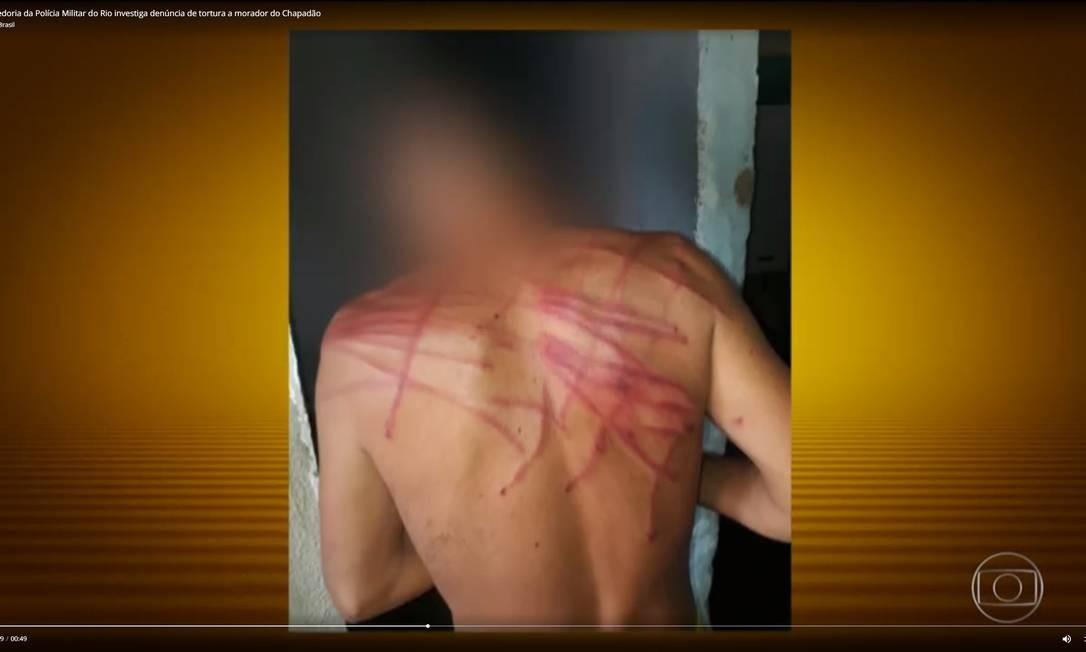 Marcas da agressão em jovem com esquizofrenia no Chapadão — Foto: Reprodução/TV Globo Foto: Picasa / -