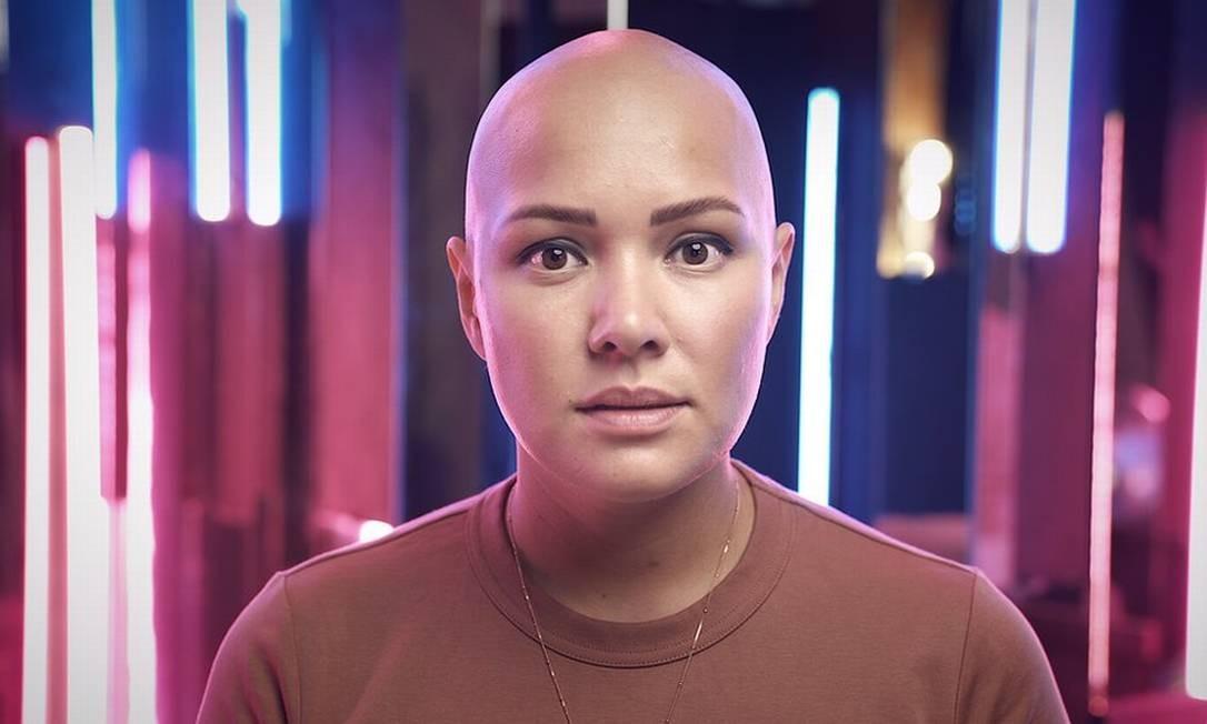 Liliya diz que sofreu bullying por ter alopecia areata, uma condição que causa perda de cabelo Foto: BBC Russia