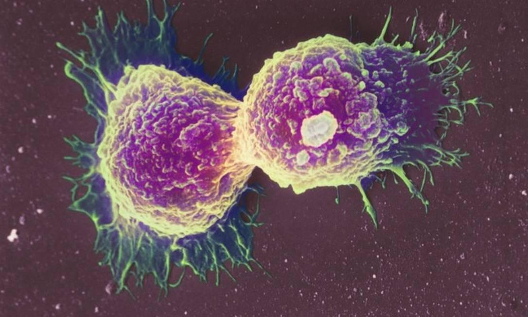 Células de câncer de mama em microscópio Foto: Science Photo Library - Latinstock