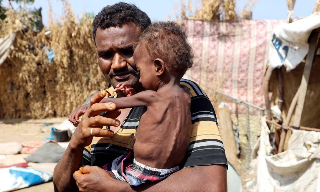 Uma menina vítima de desnutrição identificada como Hanaa Ahmad Ali Bahr é registrada no colo do seu pai na cidade de Hodeida, no Iêmen, em março de 2019 Foto: ABDULJABBAR ZEYAD / Reuters