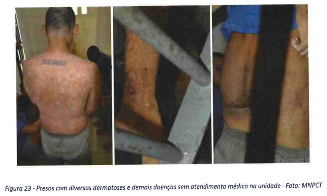 Prisão de jovens: vômito de sangue e hino nacional Foto: Reprodução