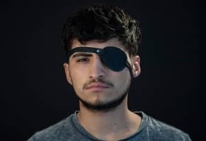 Estudante chileno Diego Foppiano, de 22 anos, foi acertado no olho durante protestos em Santiago, em outubro. Foto: MARTIN BERNETTI / AFP