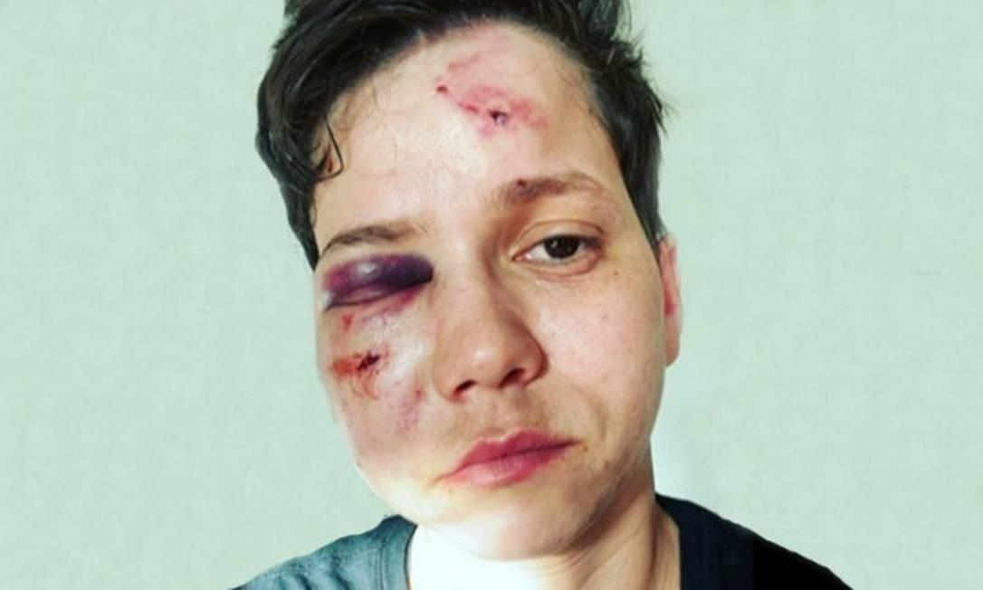 Assumidamente homossexual, a amiga de Bolsonaro, Karol Eller, foi agredida na Barra da Tijuca Foto: Reprodução