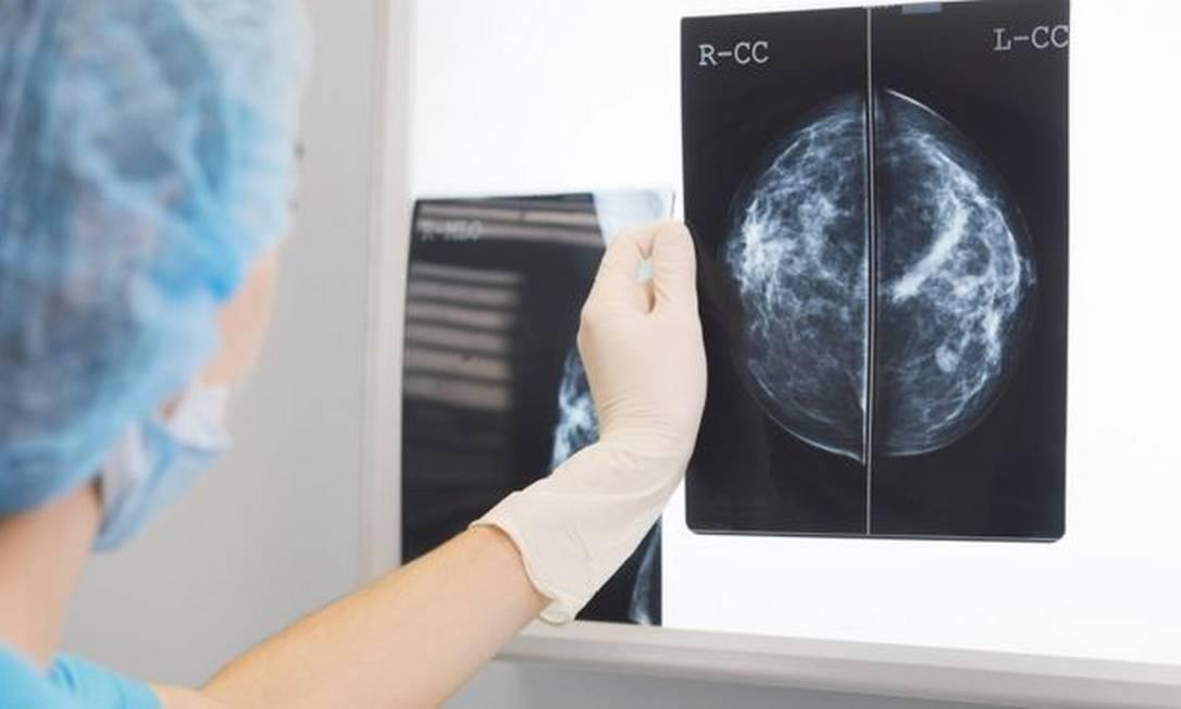A inteligência artificial se mostrou ainda tão eficiente quanto dois médicos trabalhando juntos Foto: GETTY IMAGES