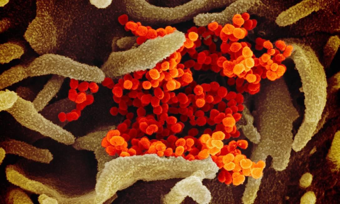 Imagem de microscópio eletrônico colorizada artificialmente mostra unidades de coronavírus COVID-19 emergindo de célula de paciente infectado nos EUA Foto: NIAID/RML/NIH