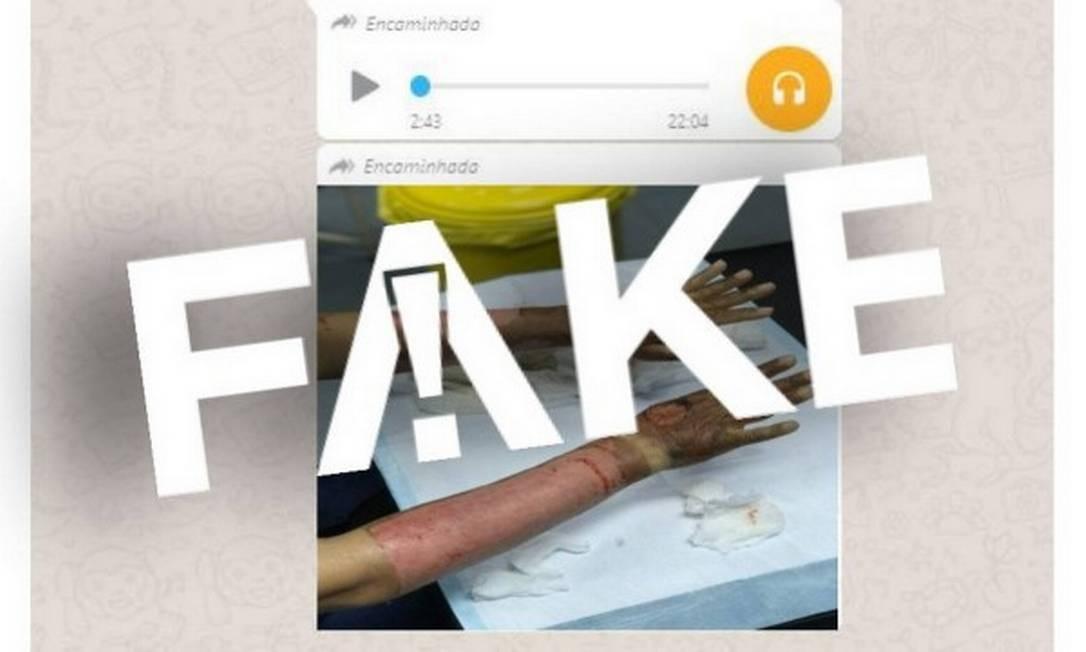 É #FAKE áudio sobre pacientes com queimaduras graves causadas por álcool em gel internados em hospital do Pará Foto: Reprodução
