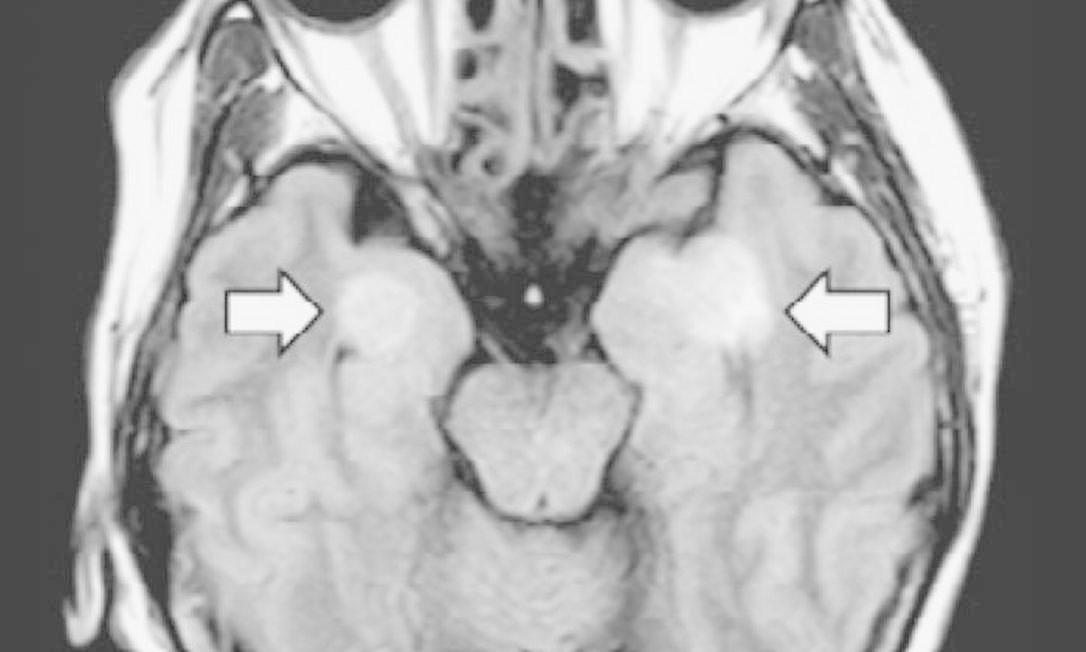 Cérebro de paciente da Covid-19 de 58 anos indica quadro de encefalite, possivelmente decorrente do coronavírus Foto: Sociedade de Radiologia da América do Norte