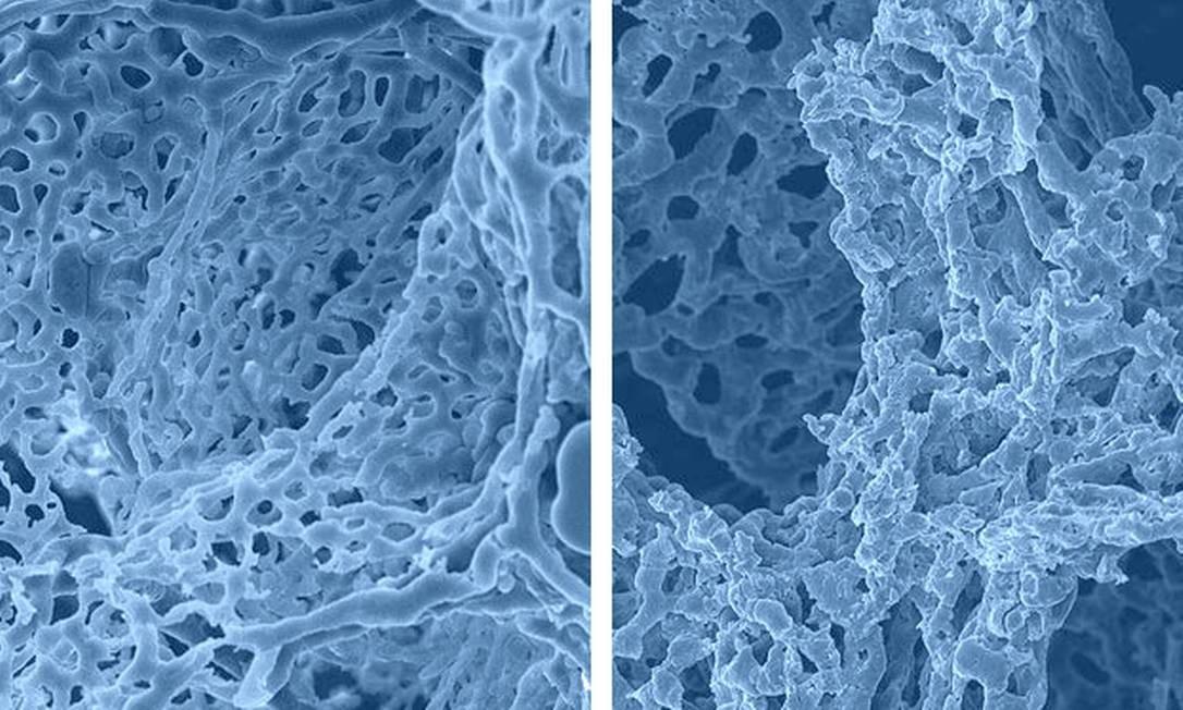 Vasos sanguíneos do alvéolo de um paciente vítima da gripe H1N1, à esquerda, comparados com vasos alveolares de um paciente de Covid-19, à direita: dano aparenta ser maior nos mortos por coronavírus Foto: Ackermann et al./NEJM