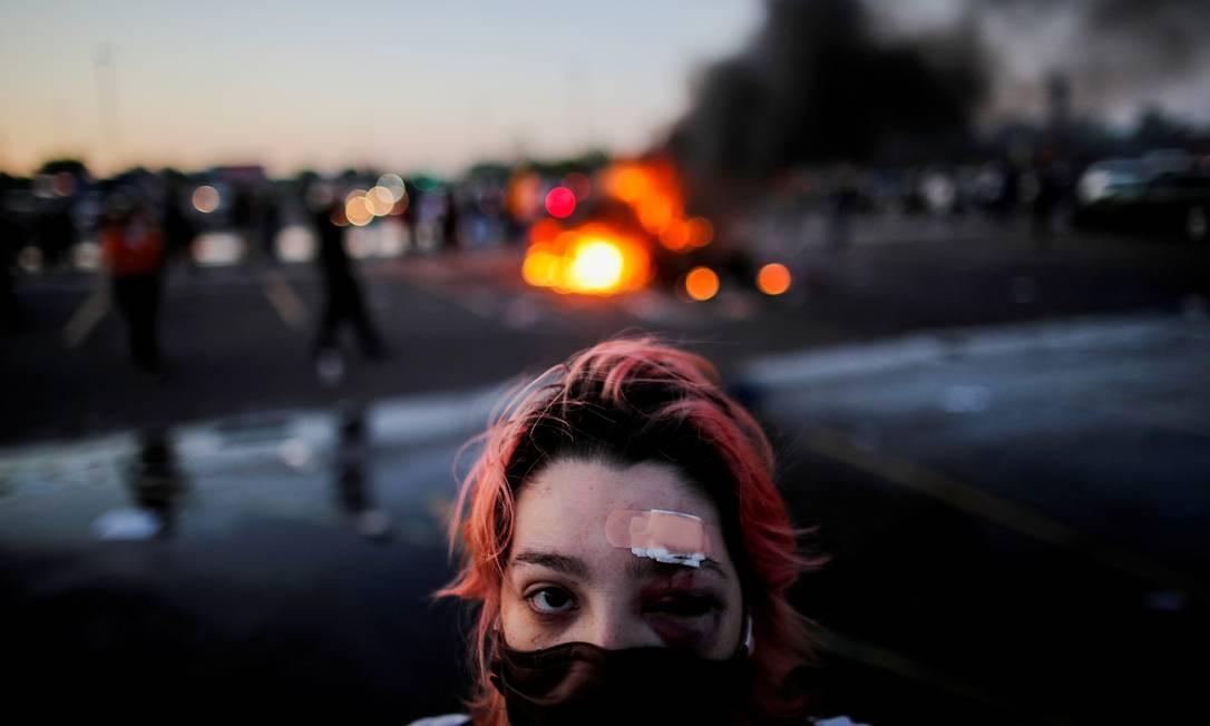 Rachel Perez é retratada com hematomas ao redor dos olhos e um curativo na testa, devido a ferimentos sofridos por balas de borracha durante os protestos de quinta-feira Foto: CARLOS BARRIA / REUTERS