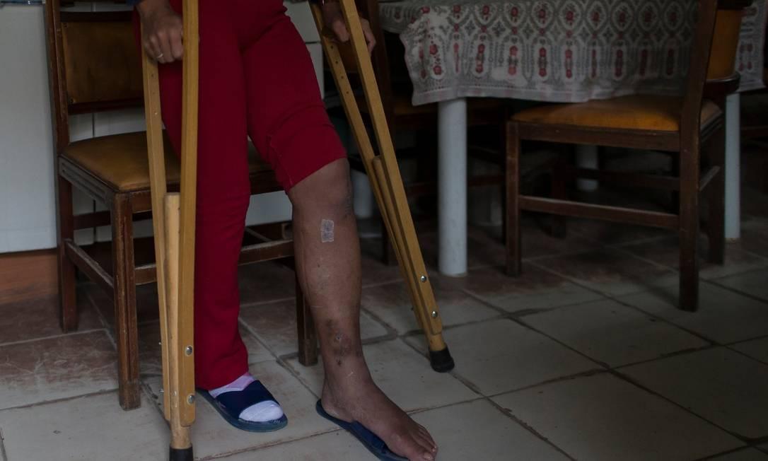 A mulher fez cirurgia e ainda se recupera das lesões na perna quebrada na ação Foto: Edilson Dantas/Agência O Globo