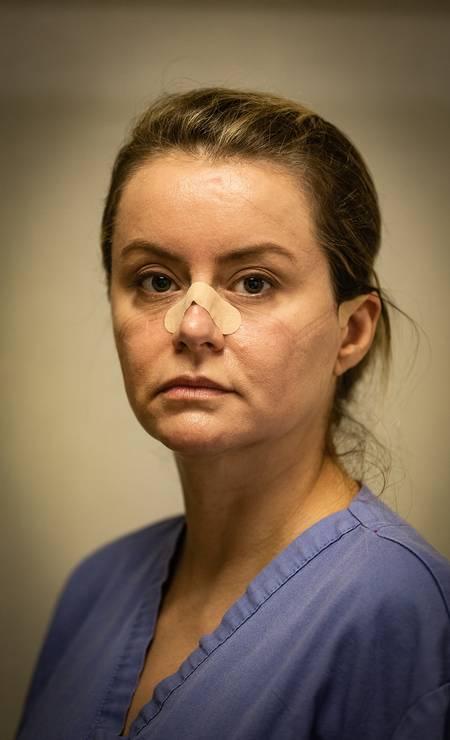 Retrato do cansaço. A médica intensivista Roberta Lima foi fotografada com o rosto marcado pelo uso excessivo da máscara N95, na linha de frente contra o coronavírus Foto: Roberto Moreyra / Agência O Globo