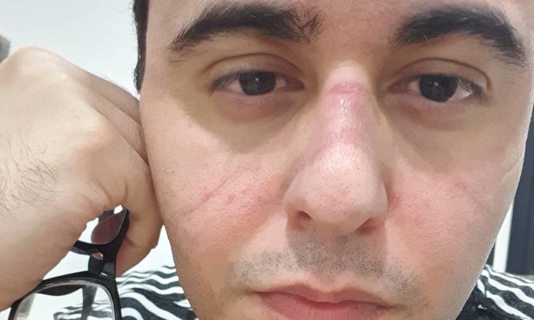Médico João Pedro Rodrigues Feitosa mostrou a marca da máscara no rosto após um plantão. Foto: Reprodução/Redes sociais