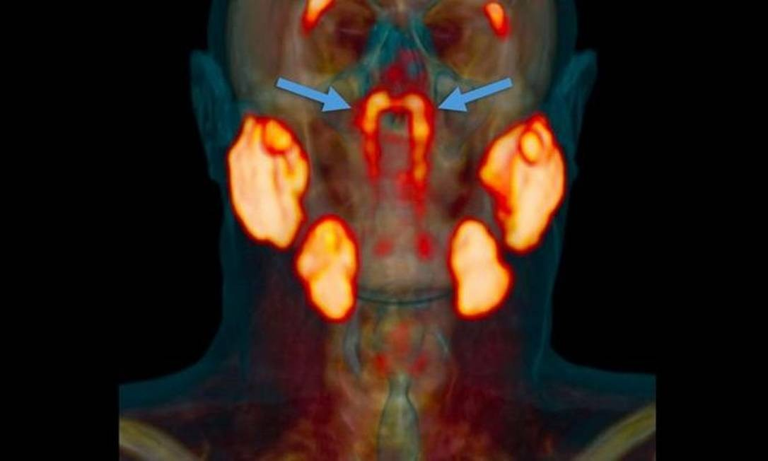 As novas glândulas ficam atrás do nariz, no encontro com a garganta Foto: VALSTAR, ET. AL./RADIOTHERAPY AND ONCOLOGY