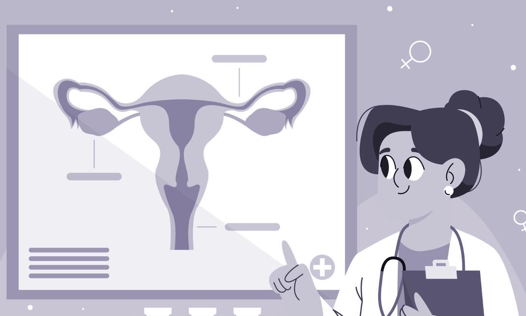 De maneira simplificada, a endometriose é quando um tecido semelhante ao que cresce dentro do útero (o endométrio) cresce fora do útero, causando muita dor e até infertilidade Foto: freepik.com