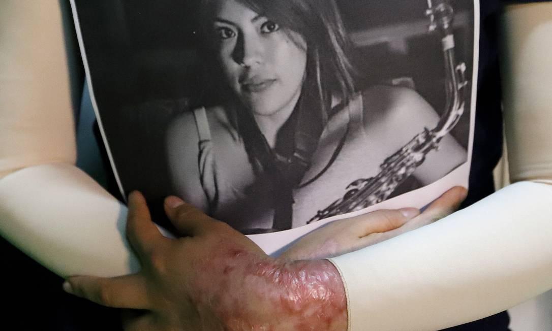 A saxofonista María Elena Ríos segura um retrato seu feito antes de ataque sofrido em setembro de 2019. A jovem, de Oaxaca, no México, foi vítima de um ataque com ácido que afetou grande parte de seu corpo. Apesar da dor física e dos danos psicológicos que a agressão lhe deixou, ela não se esconde, trabalha na sua reabilitação e exige justiça, ao mesmo tempo que se tornou uma mulher que luta contra a violência de gênero em sua cidade natal. Foto: Berenice Fregoso / El Universal/México/GDA
