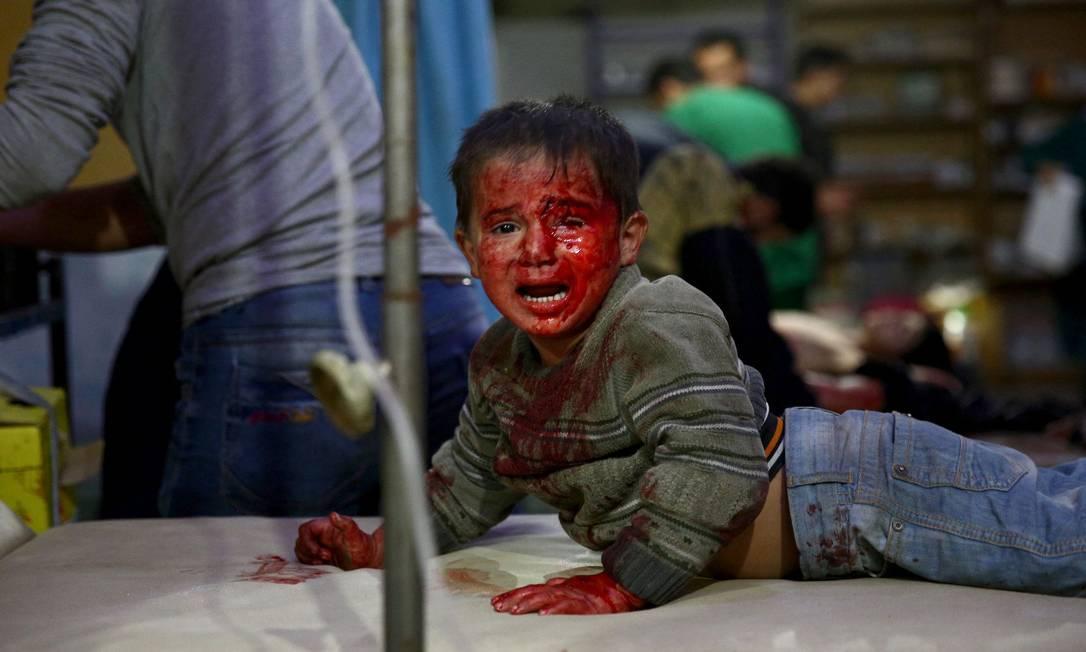 Menino sírio ferido aguarda tratamento em um hospital improvisado após relatos de ataques aéreos por for?as do governo na área controlada pelos rebeldes de Douma, a leste da capital Damasco Foto: ABD DOUMANY / AFP - 29/10/2019