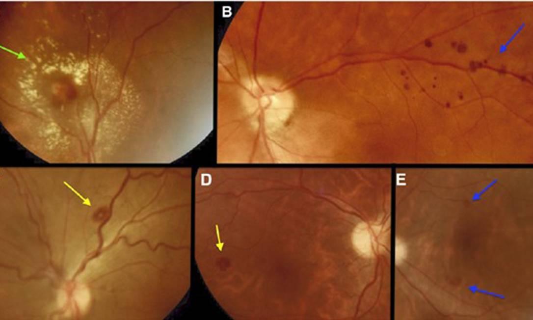 Retinas de pacientes internados com Covid-19 em UTIs e enfermarias Foto: Divulgação / Agência O Globo