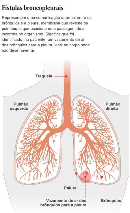 Entenda: fístula broncopleurais Foto: Arte O Globo