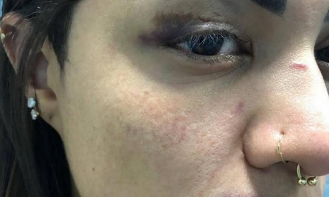Foto mostra agressões sofridas por funkeira Foto: Reprodução