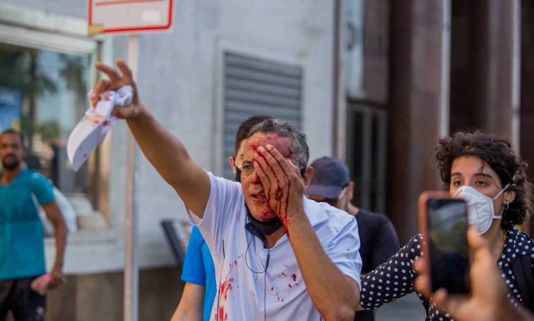 Homem é ferido no olho por tiro de bala de borracha disparado pela PM Foto: INSTAGRAM @hugomunizzz/REUTERS