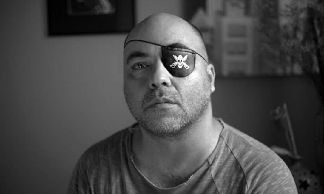 O fotógrafo Alex Silveira,perdeu a visão do olho esquerdo após tiro de bala de borracha em protesto, em São Paulo, em 2000 Foto: Sérgio Silva/Divulgação