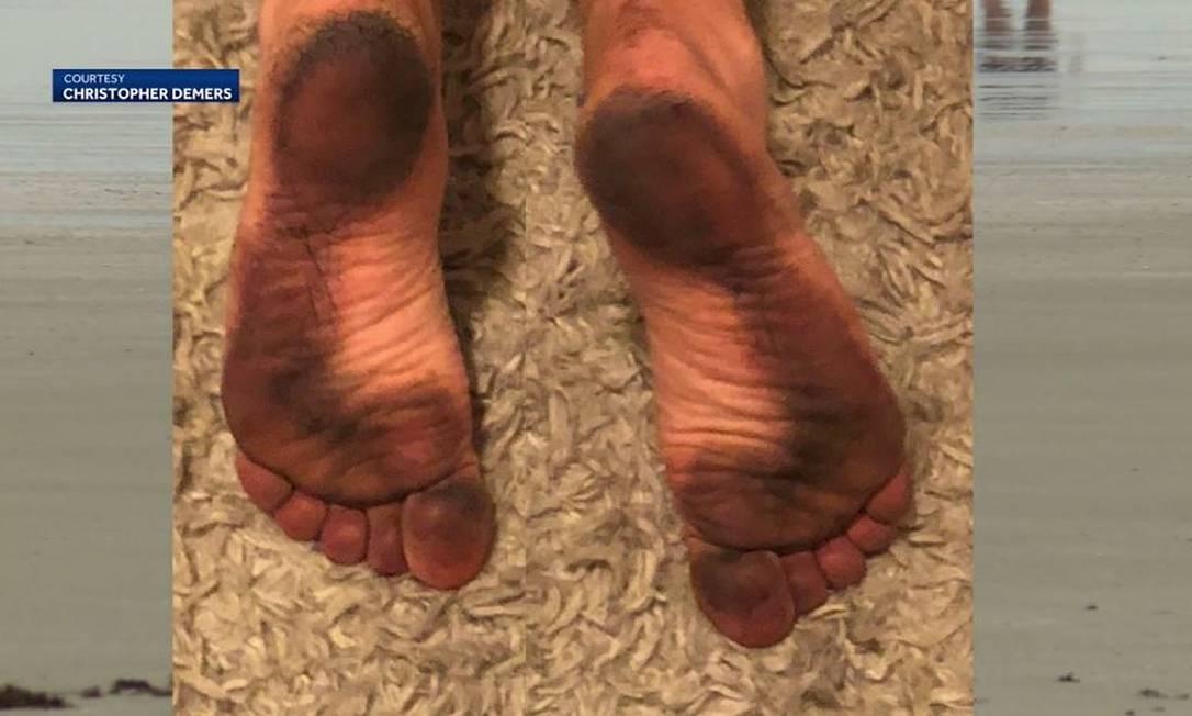 Acúmulo de carcaças de insetos mortos deixa banhistas dos EUA com manchas pretas nos pés Foto: Reprodução/WMTW via CNN