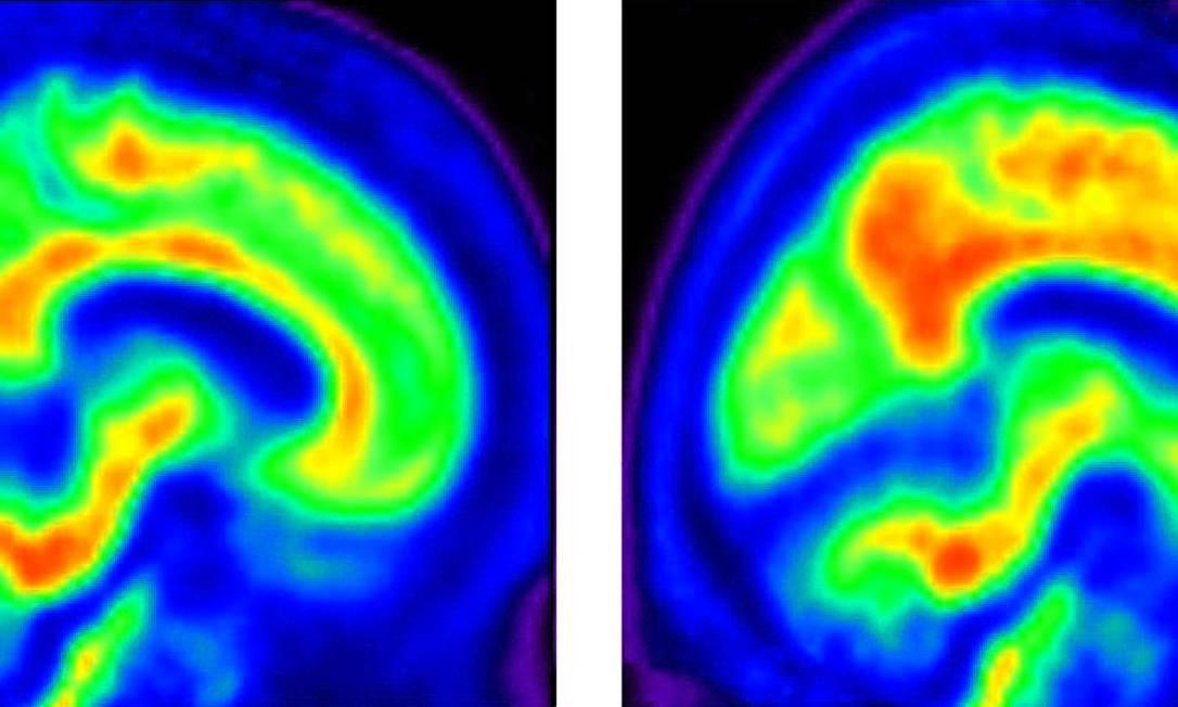 Imagem de cérebro humano Foto: AFP/UNIVERSITY OF TEXAS