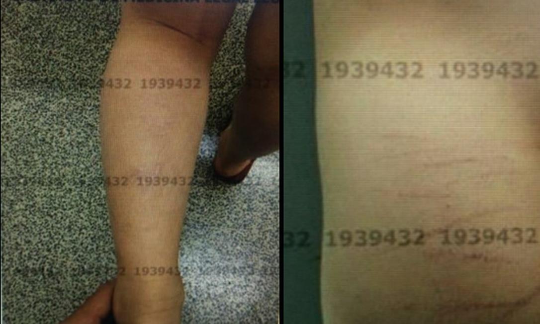 Laudo identificou na criança lesões por traumatismos diversos Foto: Polícia Civil do Distrito Federal