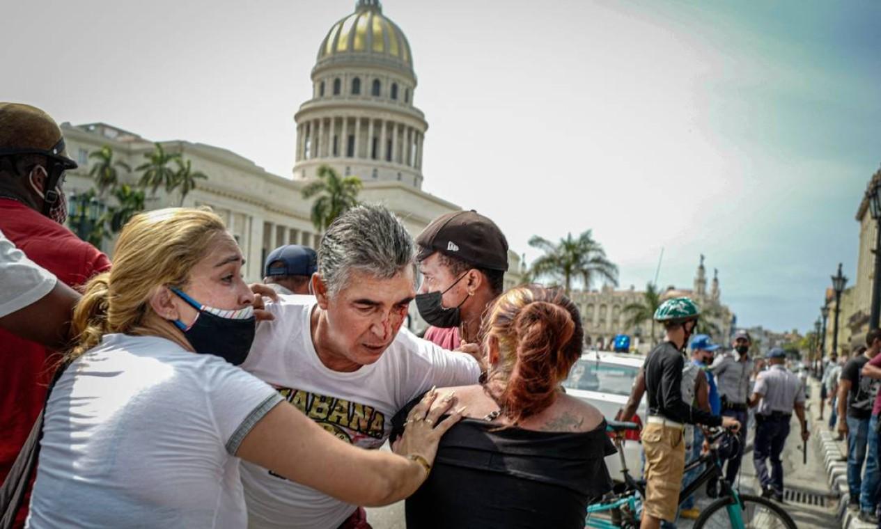Um maifestante ferido no olho é socorrido por colegas durante durante protesto contra o governo do presidente cubano, Miguel Díaz-Canel, em Havana Foto: ADALBERTO ROQUE / AFP