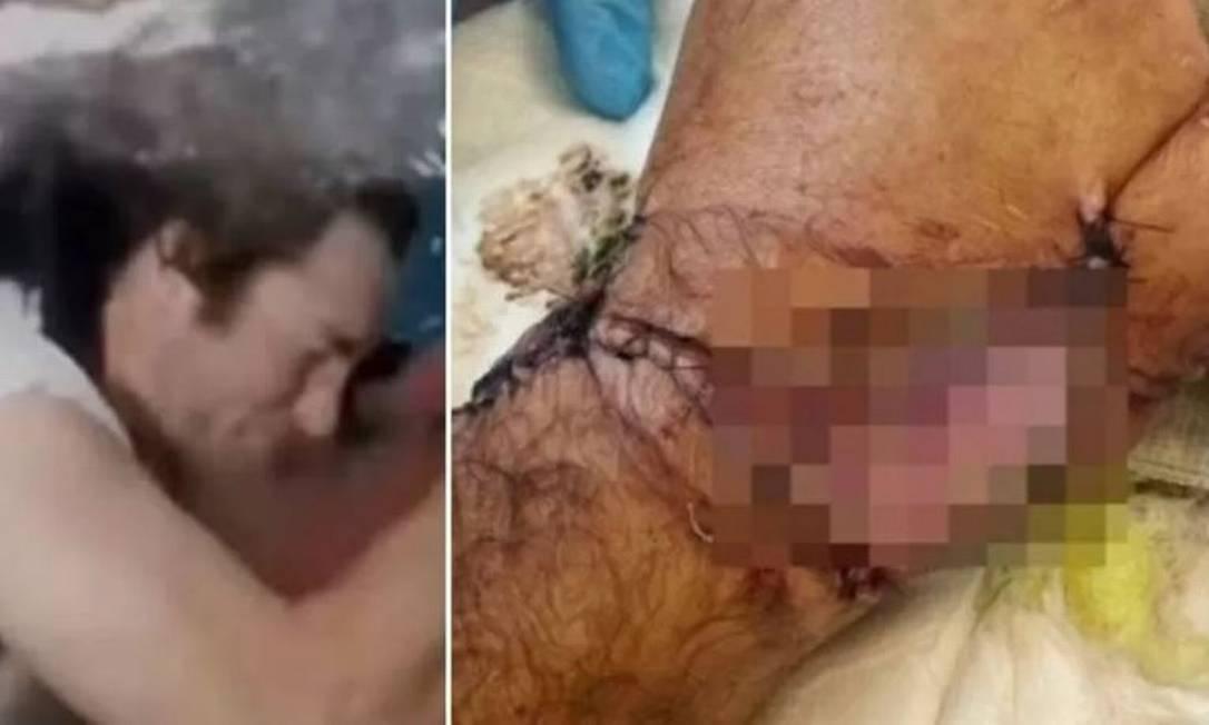 Ator Sean McInerney foi mordido por tubarão durante gravações Foto: Reprodução