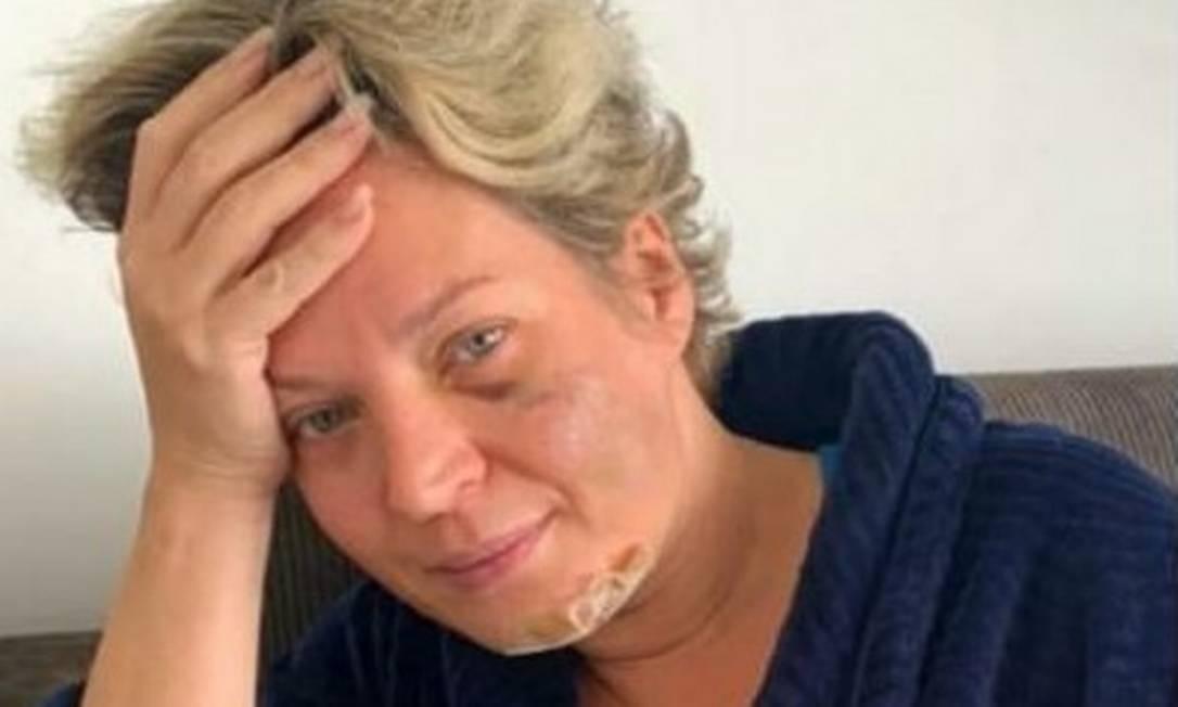 Joice Hasselmann mostra hematomas no rosto Foto: Reprodução
