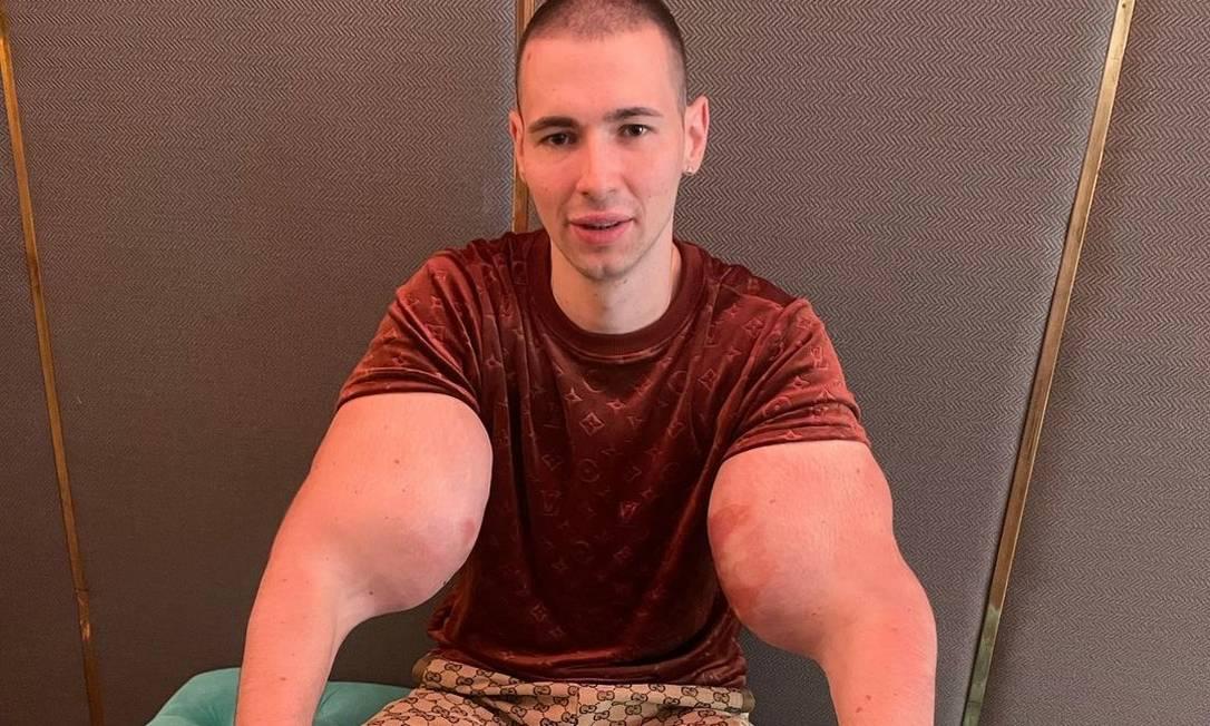 Lutador russo Kirill Tereshin injetou óleo nos músculos, prática arriscada à saúde, e sofreu lesão no bíceps durante luta Foto: Instagram / Reprodução