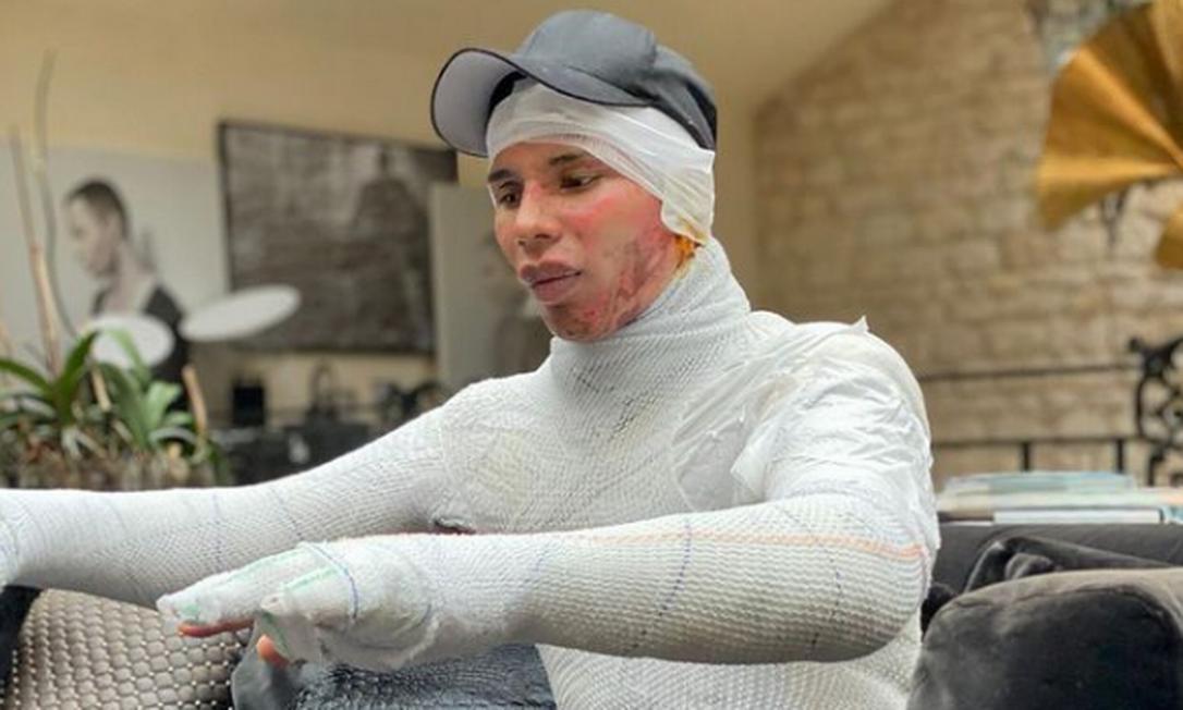 Olivier Rousteing, diretor criativo da Balmain, revela após um que foi atingido por explosão de lareira em casa Foto: Reprodução/Instagram
