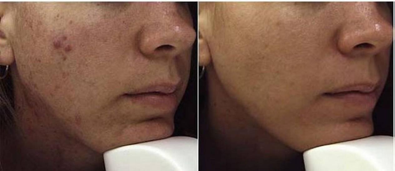 O antes e o depois de uma modelo que se submeteu ao tratamento. Foto: Divulgação