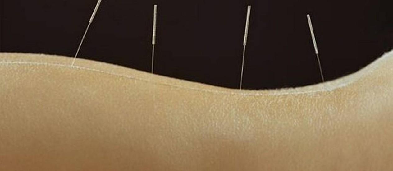 Os tratamentos alternativos para as dores nas costas Foto: Divulgação WebMD