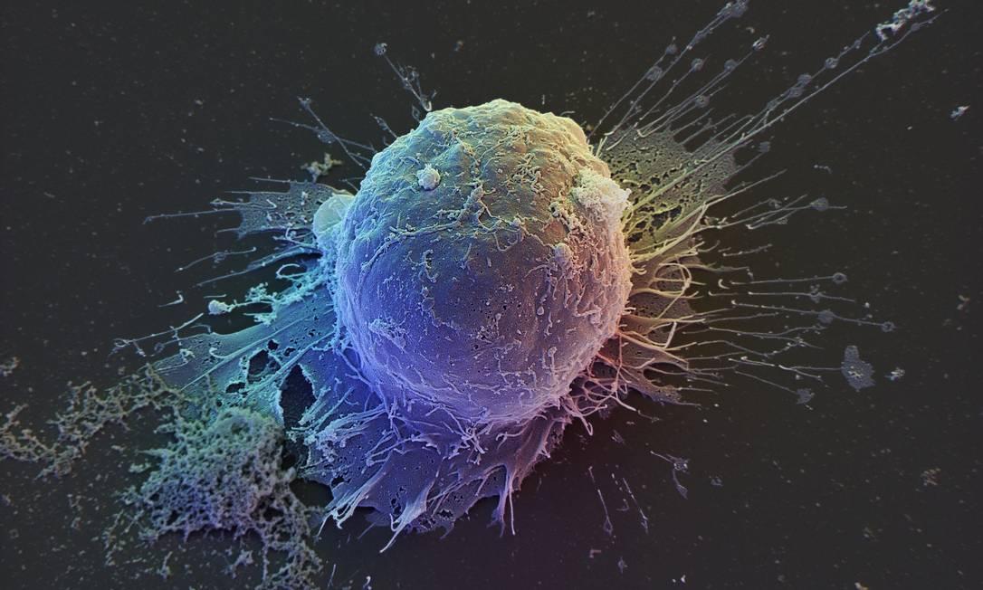 A imagem ampliada mostra uma célula-tronco extraída de um embrião humano: esperança contra numerosas doença Foto: Latinstock