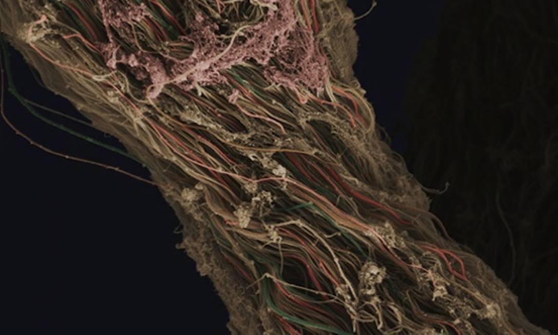 A imagem mostra tecido conjuntivo retirado de um joelho humano durante uma cirurgia. As fibras individuais de colágeno podem ser distinguidas Anne Weston